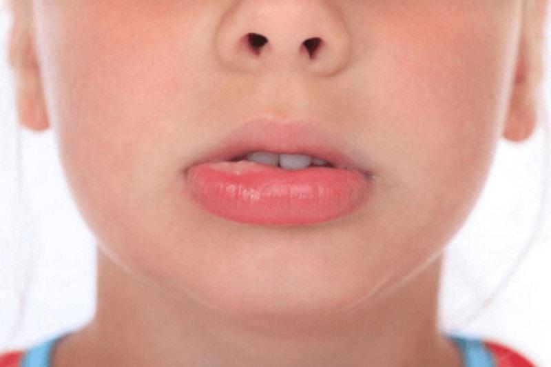 Biểu hiện sưng môi khi bị nổi mày đay