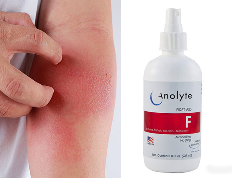 Sử dụng nước Anolyte chữa viêm da cơ địa là phương pháp mới xuất hiện