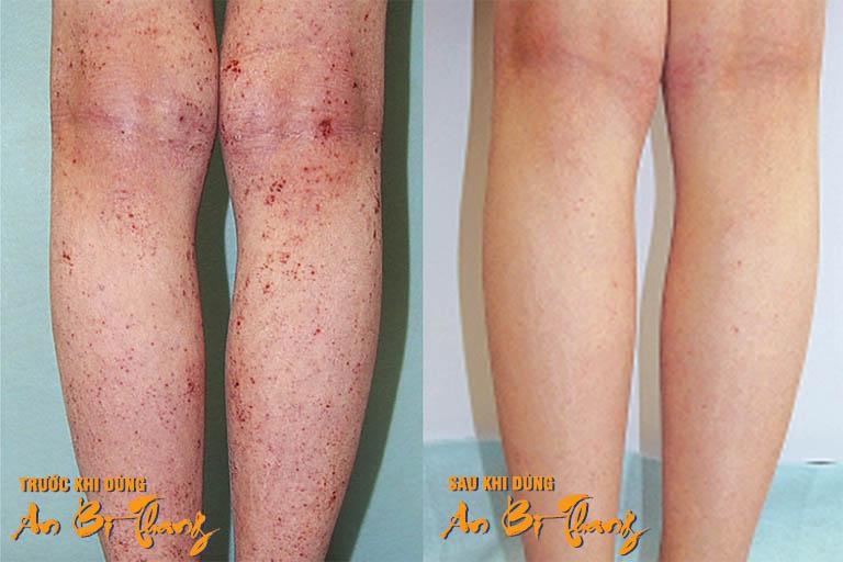 Vùng da bị viêm da cơ địa của bệnh nhân Kiên Trịnh (Hải Phòng) đã hồi phục hoàn toàn sau liệu trình 3 tháng điều trị với bài thuốc An Bì Thang
