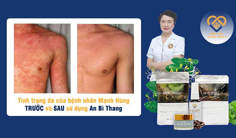 Bệnh nhân Mạnh Hùng (Nghĩa Lộ, Yên Bái) đã có sự cải thiện đáng kể sau 2 tháng sử dụng An Bì Thang
