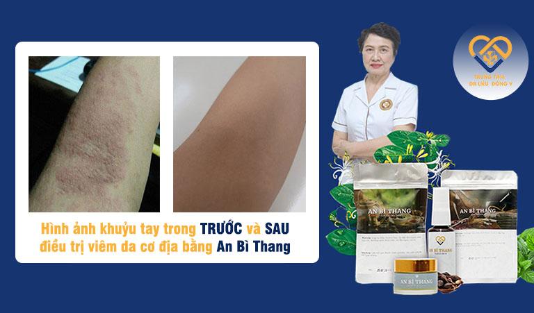 Hình ảnh bệnh nhân cung cấp về hiệu quả khi sử dụng bài thuốc An Bì Thang