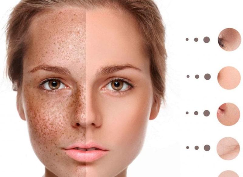 Xuất hiện đốm nhỏ có màu từ nâu đến đen là triệu chứng điển hình