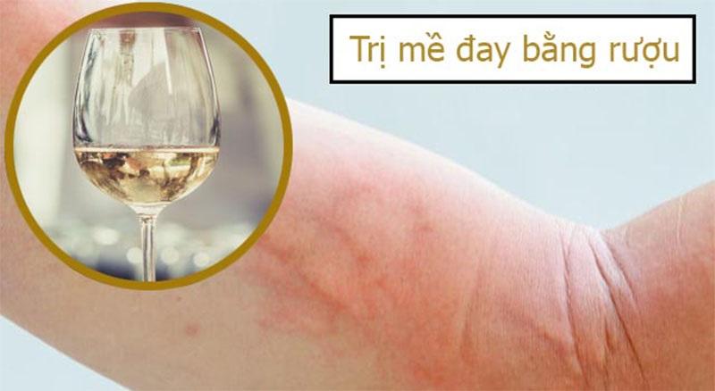 Các bác sĩ khuyên chỉ nên trị mề đay bằng rượu ngâm thảo dược