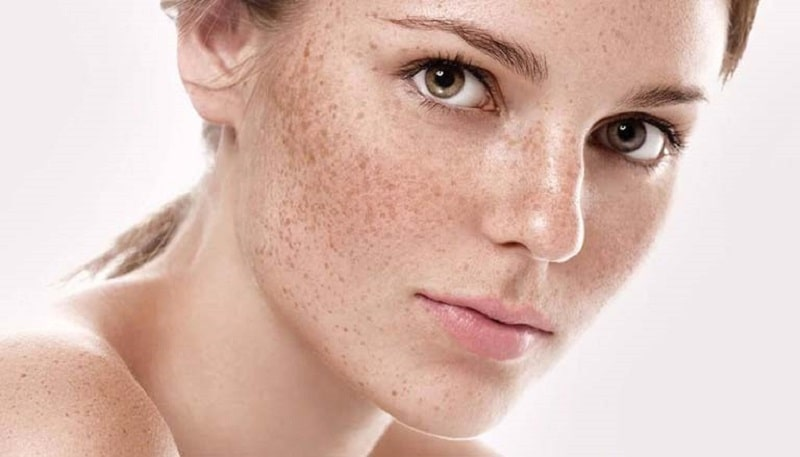 Trị nám da tại nhà bằng các mẹo dân gian là phương pháp an toàn
