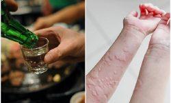 Uống rượu nổi mề đay có thể là do dị ứng với thành phần có trong rượu bia