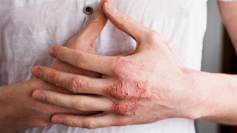 Thông thường, tình trạng viêm da cơ địa bội nhiễm mắc phải khi người bệnh bị viêm da cấp tính