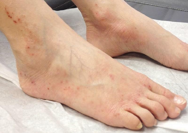 Các triệu chứng viêm da cơ địa ở chân thường khá rõ ràng