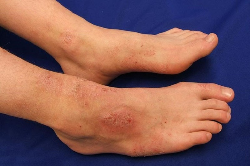 Bệnh có thể gây ra những biến chứng, ảnh hưởng đến sức khỏe và thẩm mỹ của người bệnh