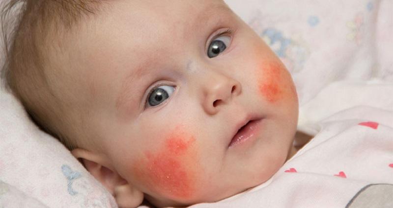 Viêm da cơ địa ở trẻ em là tình trạng bệnh da liễu mãn tính xuất hiện ở trẻ