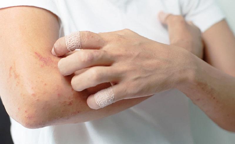 Viêm da cơ địa tái đi tái lại khiến người bệnh gặp nhiều phiền toái