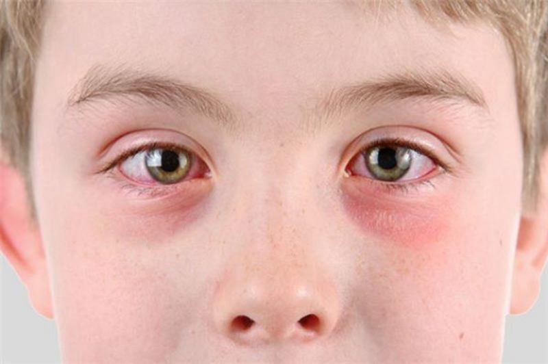 Bị nổi mẩn đỏ quanh mắt có thể là dấu hiệu của bệnh nổi mề đay