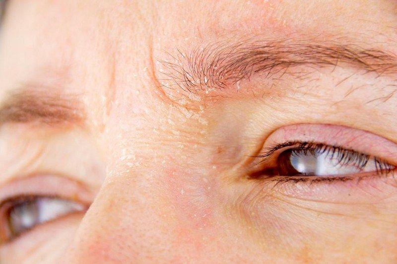 Một số lưu ý cần nhớ trong chăm sóc và điều trị bị nổi mẩn đỏ quanh mắt