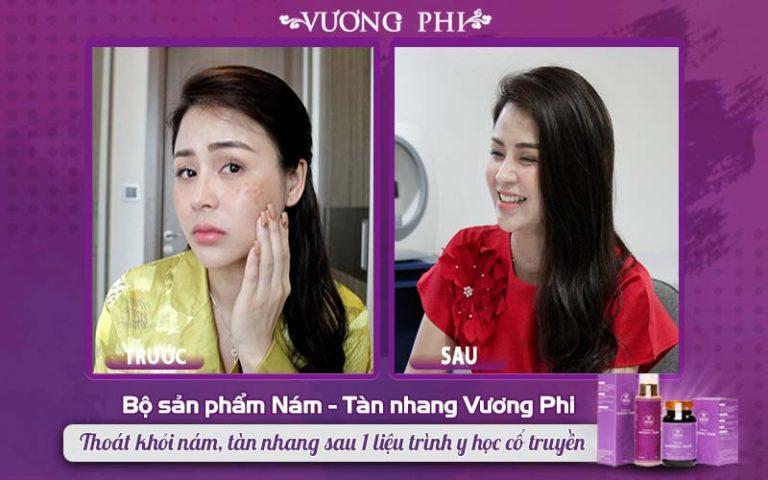 Hình ảnh khác biệt của diễn viên Lương Thu Trang trước và sau khi điều trị