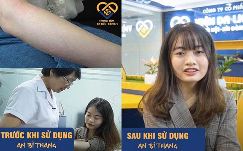 Hình ảnh trước và sau điều trị mề đay của Mỹ Linh