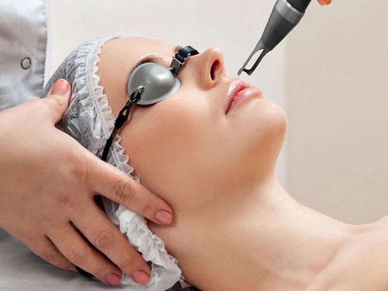Kỹ thuật laser điều trị mụn bọc hiệu quả
