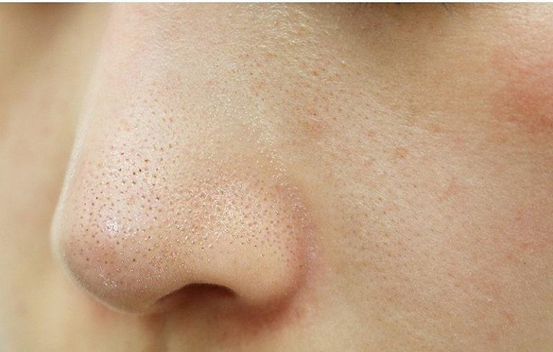 Bạn nên chăm sóc da cẩn thận để hạn chế mụn cám phát triển