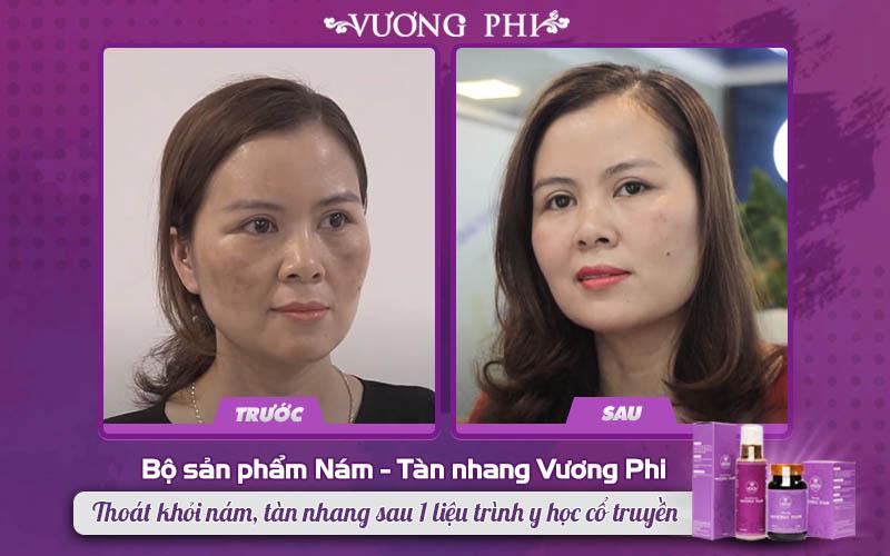 Chị Nguyễn Thị Mơ (45 tuổi, bán hàng tạp hóa) đã thoát khỏi nám sạm sau 1 liệu trình dùng thảo dược tự nhiên