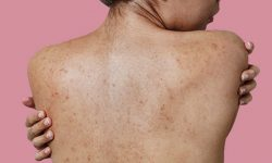 Nổi mẩn đỏ không ngứa có thể gây ra nhiều biến chứng nguy hiểm