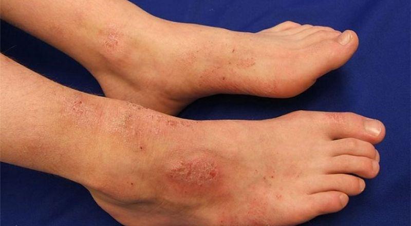 Nổi mẩn đỏ ngứa ở chân có thể do viêm da tiếp xúc