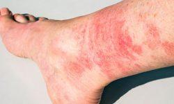 Một số người xác định nguyên nhân do nấm chân