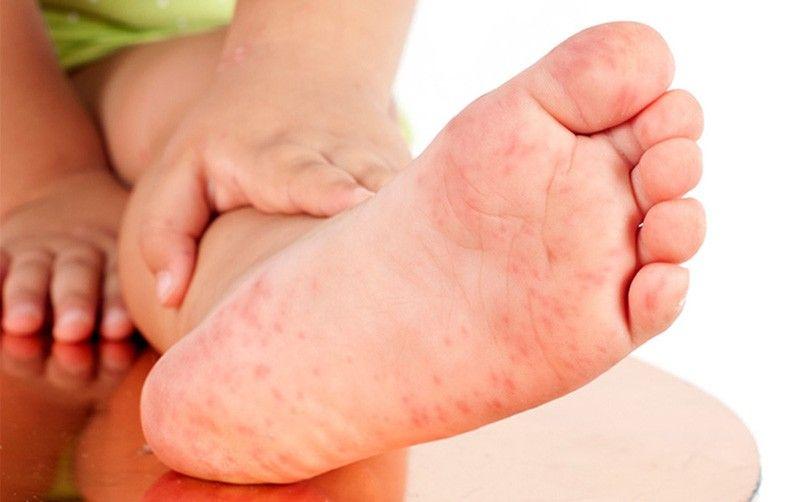 Hoặc có thể bị nổi mề đay mẩn ngứa ở chân