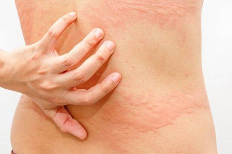 Triệu chứng nổi mẩn đỏ ngứa ở lưng