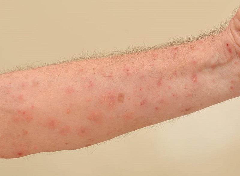 Người bệnh không nên chủ quan khi da tay bị nổi mẩn đỏ và ngứa ngáy