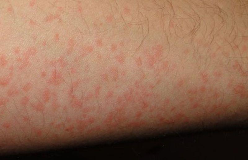 Người bệnh cũng có thể bị nấm trên da tay