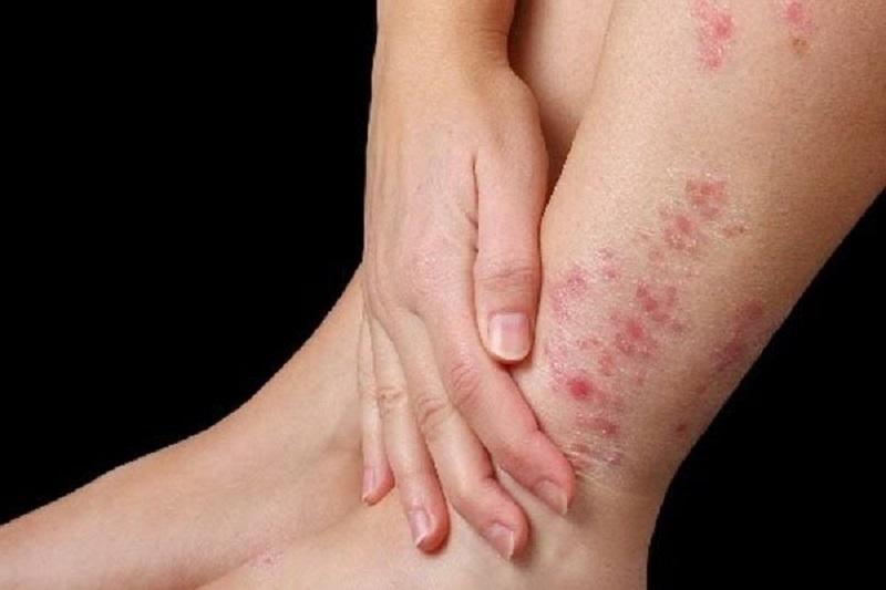 Nổi mẩn ngứa ở chân có thể gây nhiều phiền toái cho người bệnh