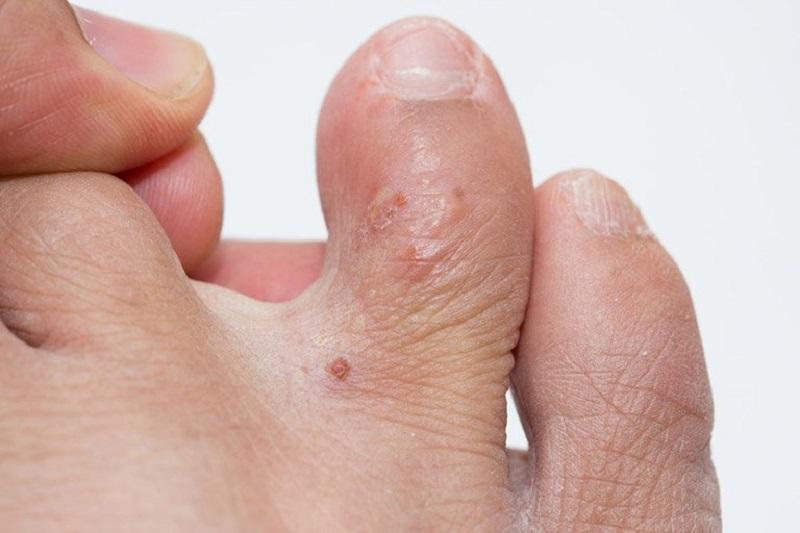 Bệnh tổ đỉa có thể khiến người bị mẩn ngứa ở chân và tay