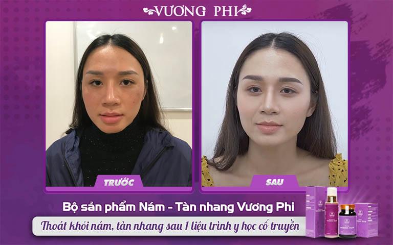 Chị Thu Hương đã tin tưởng lựa chọn Vương Phi để trị nám sau sinh
