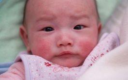Trẻ sơ sinh bị nổi mẩn đỏ ở mặt do rôm sảy