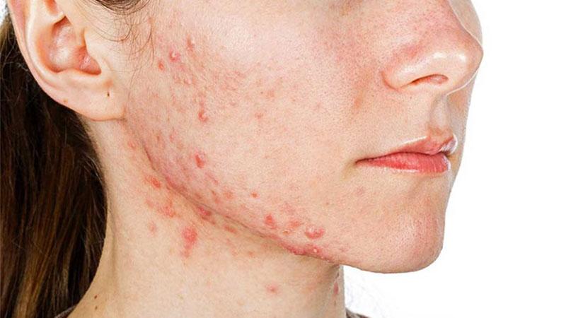 Bạn nên vệ sinh da sạch sẽ để ngăn mụn tuổi dậy thì phát triển