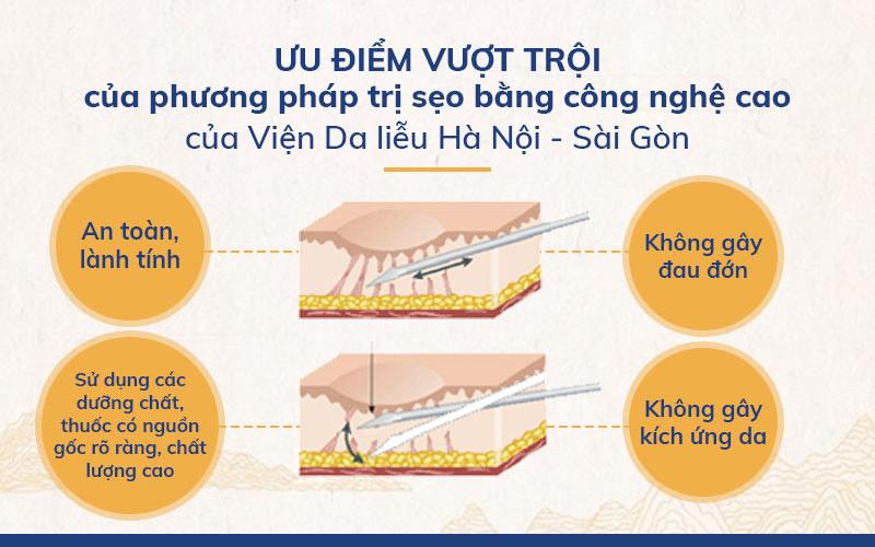 Những ưu điểm của phương pháp tách đáy sẹo rỗ