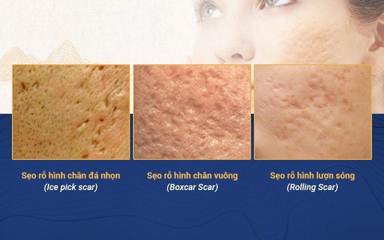 Sẹo có chân bám sâu dưới bề mặt da nên rất khó điều trị nếu không đúng phương pháp