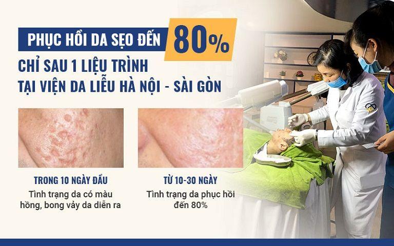 Công nghệ bóc tách trị sẹo mang lại hiệu quả cao, loại bỏ sẹo từ gốc, ngăn ngừa tái phát