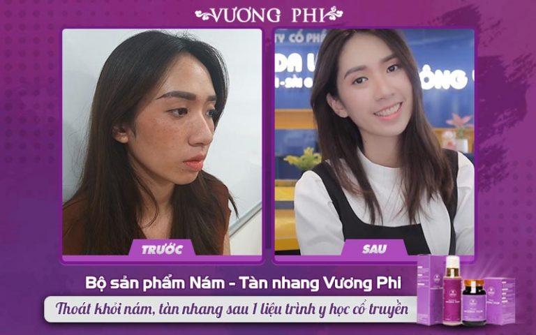 Khách hàng 27 tuổi hồi sinh làn da tươi trẻ sau khi điều trị tàn nhang lâu năm bằng Vương Phi