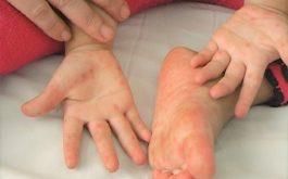 Sốt nổi mẩn đỏ ngứa ở trẻ em nghi ngờ bệnh chân tay miệng
