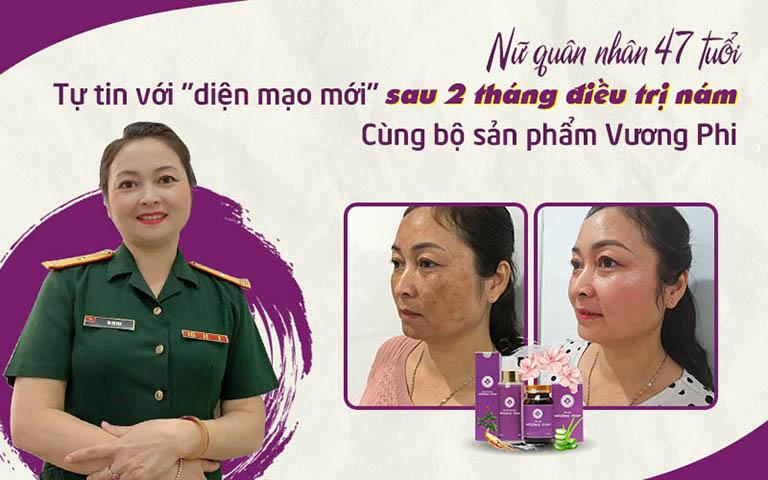 Hình ảnh khác biệt của diễn viên Lương Thu Trang trước và sau khi sử dụng Vương Phi