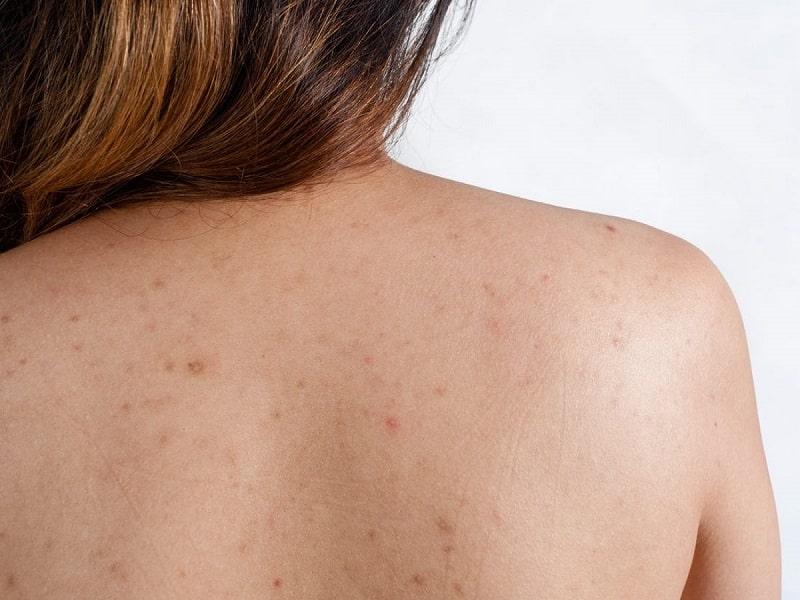 Hình ảnh bệnh nhân bị viêm nang lông ở lưng