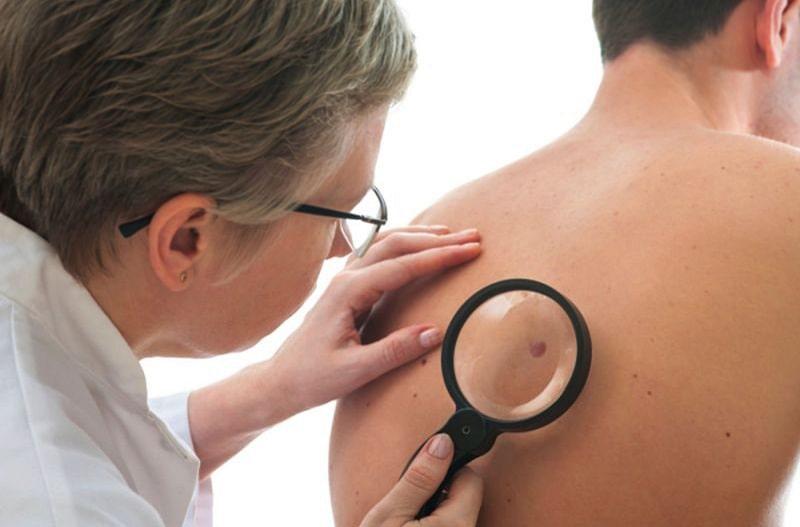 Bệnh nhân cần đi thăm khám khi có những dấu hiệu khác lạ trên da