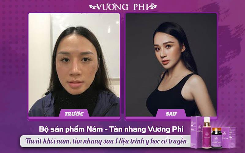 Chị Thu Hương tin dùng Vương Phi để trị nám sau sinh