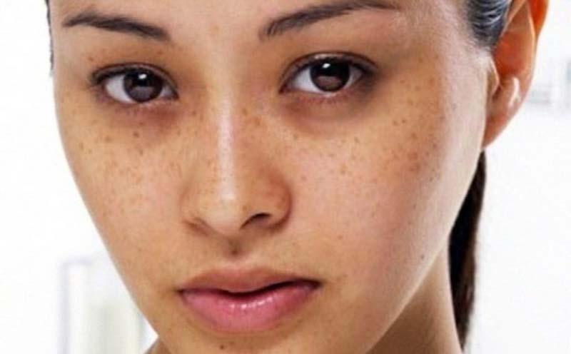 Da không đều màu do sự phân tán không đồng đều lượng melanin tích tụ