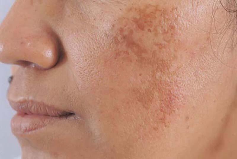 Nám da là một trong những hệ quả của rối loạn sắc tố
