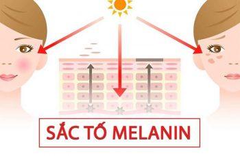 Sắc tố melanin