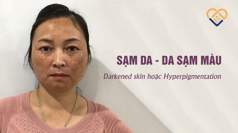 """Với thắc mắc sạm da tiếng Anh là gì, theo healthgrades.com, da sạm màu trong tiếng Anh là """"Darkened skin"""" hoặc """"Hyperpigmentation"""""""