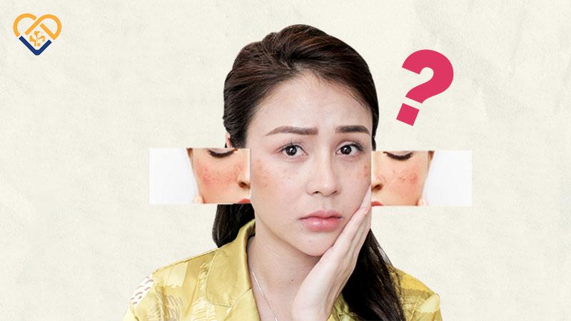 Sạm da mặt ở nữ mang lại nhiều phiền toái