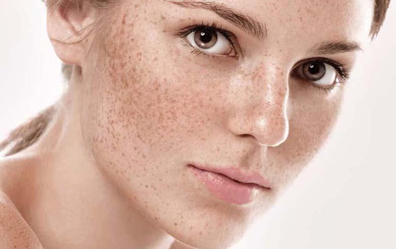 Làn da bị tàn nhang do rối loạn sắc tố da