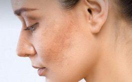 Có rất nhiều các cách chăm sóc da mặt bị sạm đen, các bạn có thể tham khảo để áp dụng với làn da của mình nhé