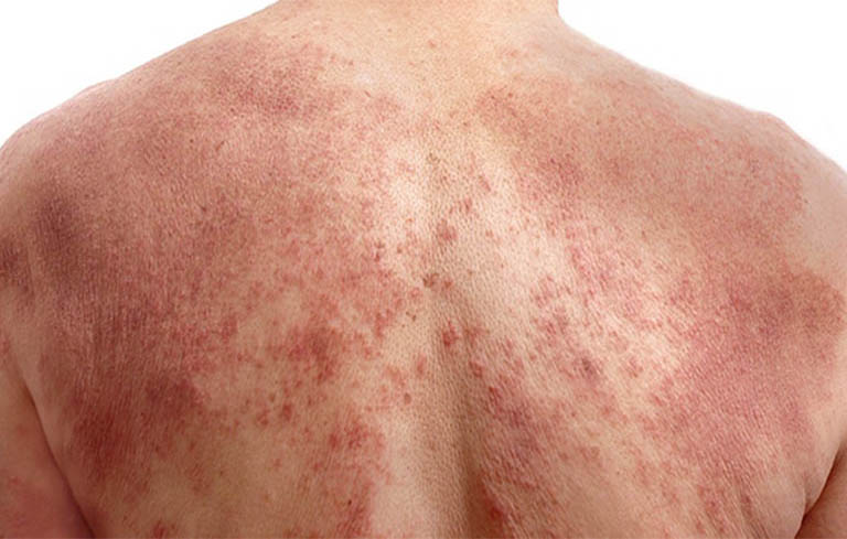 Vùng da bị mẩn vô cùng ngứa ngáy, có lúc đau nhức giật giật như bị con gì đốt